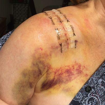 collarbonepostsurgery